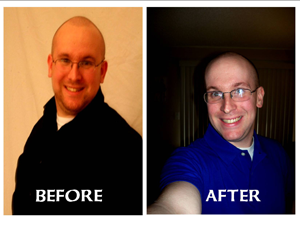 Geoff Breedwell - Before and After